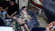 [사진] 치료받는 어린이들…시리아 군 화학무기 사용 의혹