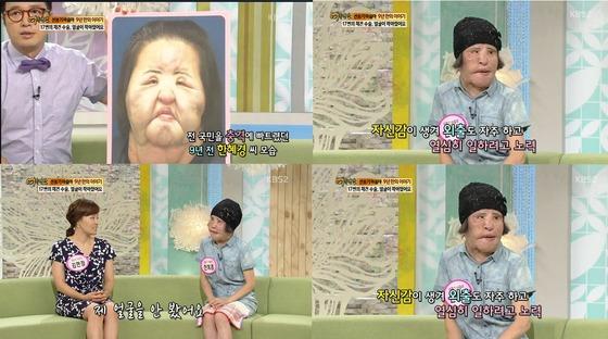 [N이슈] '선풍기 아줌마' 한혜경씨 15일 사망…향년 57세