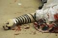 [사진]사살된 유대교 회당 테러리스트