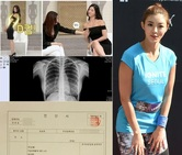 """유승옥 """"D컵 가슴 자연산"""" 엑스레이 사진 공개"""