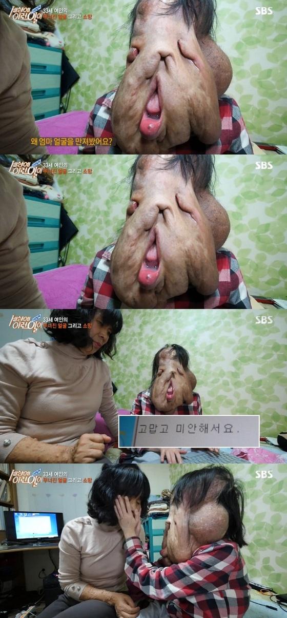 신경섬유종 30대 여인의 눈물…후원금 9억 원 모여