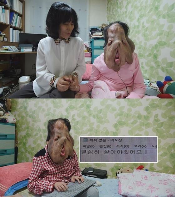 '세상에 이런 일이' 신경섬유종 심현희씨, 수술 결심 '방송 이후 공개'