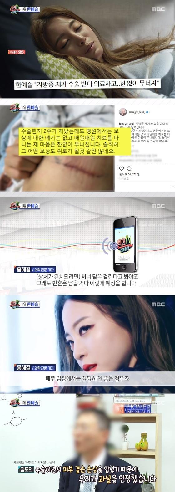 '섹션TV연예통신' 한예슬 의료 사고 언급…담당 집도의, 과실 인정