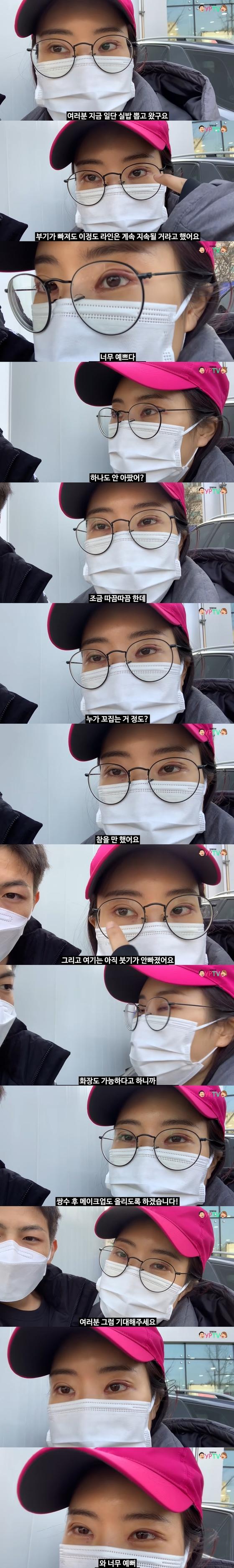 """이세영, 쌍꺼풀 수술 후 실밥 제거 … 외모가 극적으로 변했다 """"너무 예뻐"""""""